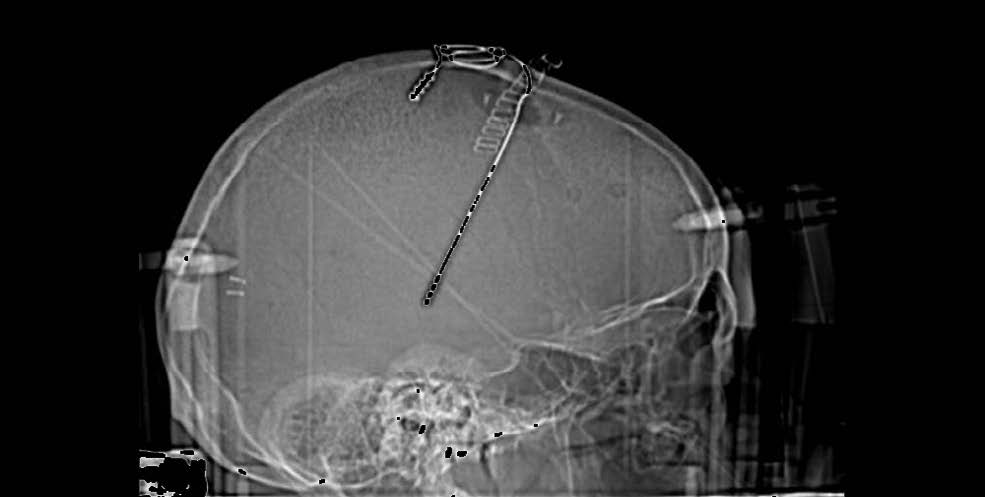 X-ray of a patient with deep brain stimulator electrode