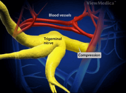 TRIGEMINAL NEURALGIA video