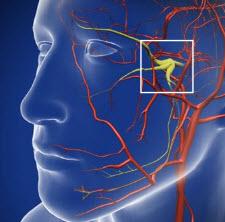 Trigeminal-Neuralgia-Fact-Sheet.jpg